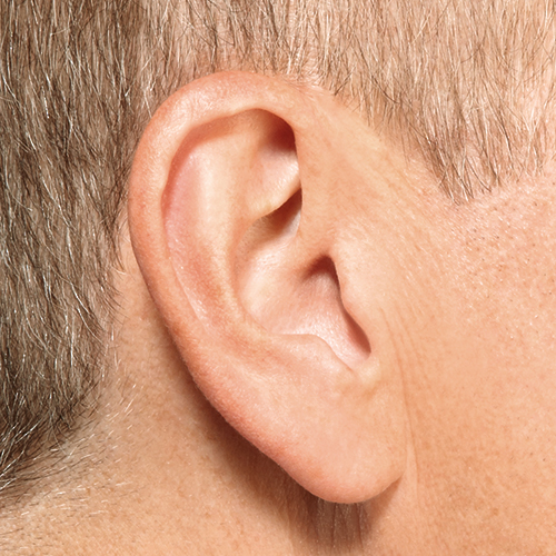 Invisible in Canal Hearing Aid in Ear IIC